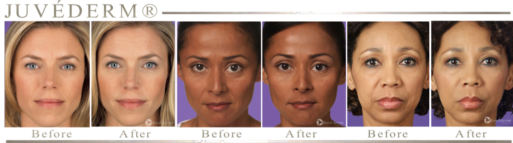 AMAZING RESULTS WITH JUVEDERM FROM PLATINUM MOBILE MEDSPA