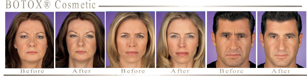 Before and After Botox Cosmetic Treatments