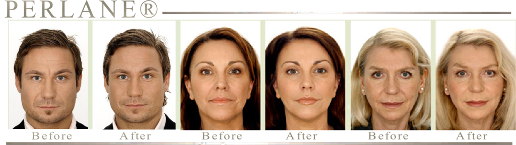 RESULTS FROM PERLANE WITH PLATINUM AESTHETICS MOBILE MEDSPA OF BROWARD COUNTY FLORIDA