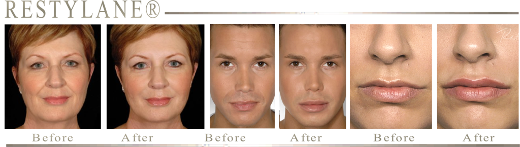 RESULTS FROM RESTYLANE PLATINUM MOBILE MEDSPA FLORIDA